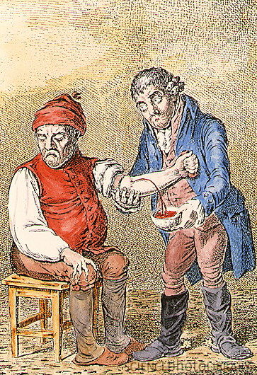 N8000055-Coloured_artwork_of_a_doctor_bleeding_a_patient-SPL